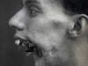 The Man with a Tin Face